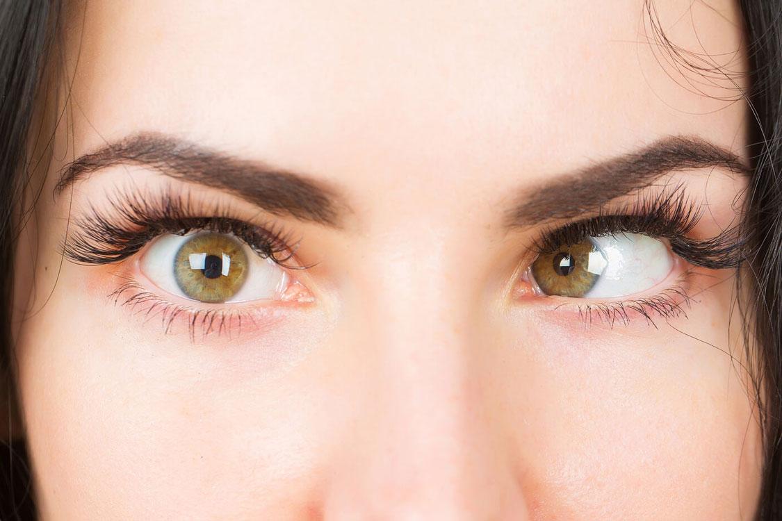 2e020b7264ad0 Mas afinal, o que é o estrabismo  – Chiado Eyeglass Factory