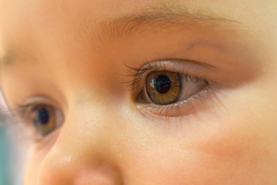 Ótica de criança: como tratar do olho seco nos mais pequenos?